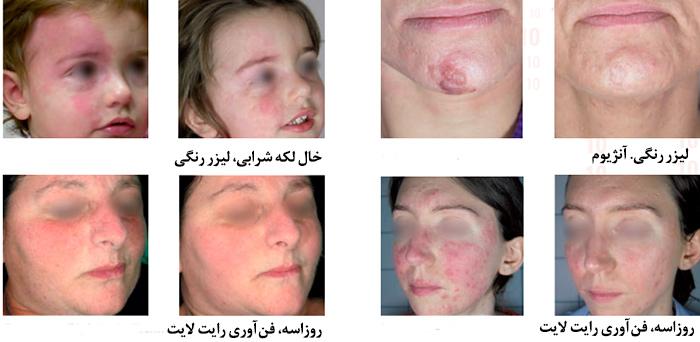 درمان ضایعات عروقی با pdl