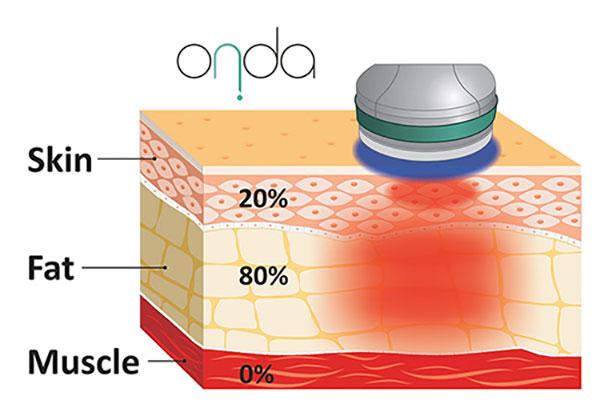 میزان نفوذ امواج در دستگاه لاغری کول ویو اوندا در پوست