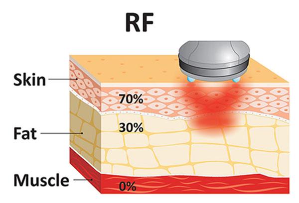 میزان نفوذ امواج رادیو فرکانسی در پوست