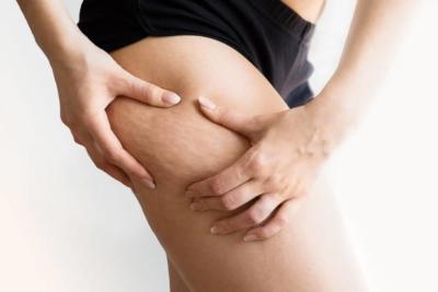 women thigh has cellulite