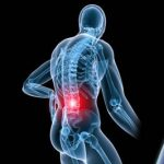 اثر لیزر درمانی بر روی بیماری های اسکلتی