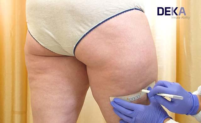آموزش درمان سلولیت با دستگاه اوندا