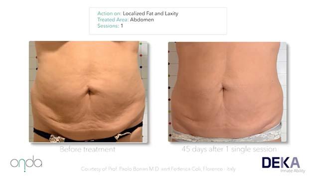 فیلم عکس های قبل و بعد درمان با دستگاه لاغری اوندا