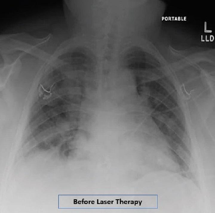 عکس ریه بیمار کرونایی بعد لیزر تراپی