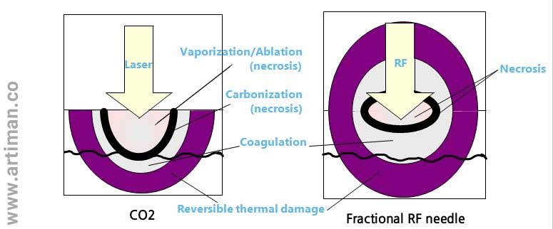 تفاوت co2 فرکشنال و آر اف فرکشنال