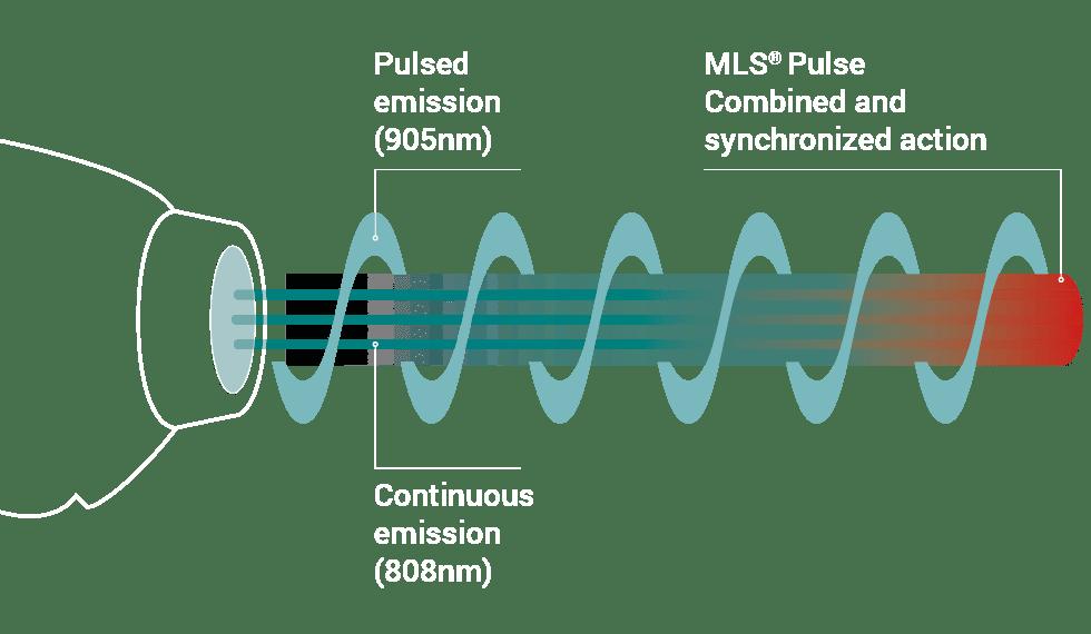 mls لیزر تراپی